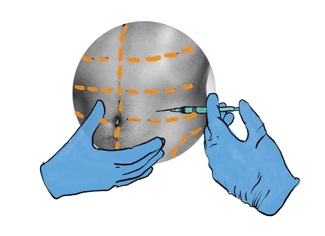 phẫu thuật thẩm mỹ hút mỡ bụng