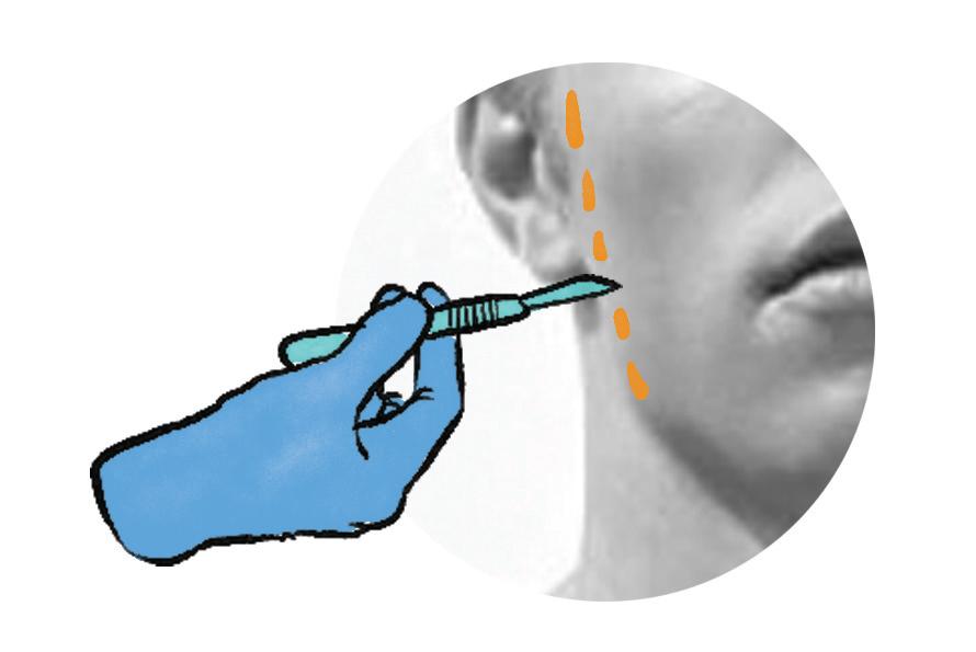 phẫu thuật thẩm mỹ nâng da vùng cổ