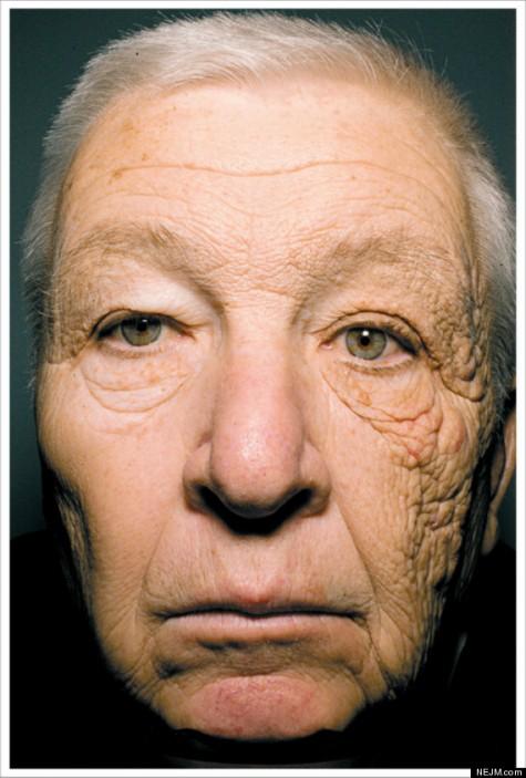Khuôn mặt gây sốc của Bill McElligott dưới sự tàn phá của tia UVA