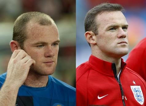 Bên cạnh Rooney, rất nhiều diễn viên tên tuổi khác bao gồm James Nesbitt cũng thay đổi nhờ hair transplant.