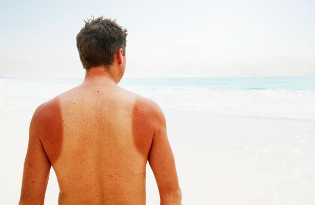 5 lỗi phổ biến của phái mạnh khi dùng kem chống nắng