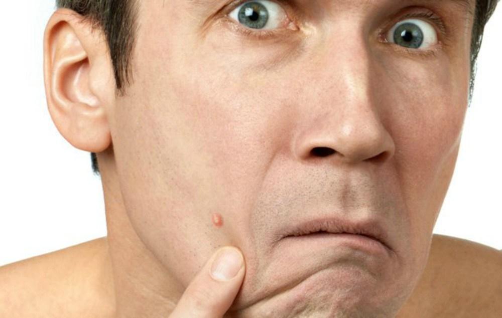 tác hại của stress - elle man 3