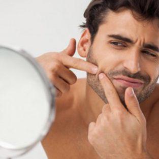 Chăm sóc da sau khi nặn mụn liệu có quá khó cho nam giới?