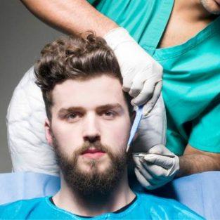 8 điều cần biết về cấy ghép tóc trước khi thực hiện
