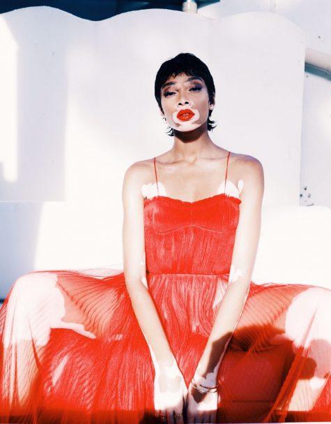 người mẫu Winnie Harlow