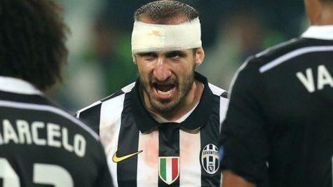 Giorgio Chiellini: Khi bóng đá là trận chiến sinh tử