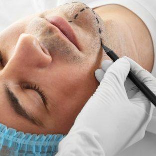 Nam giới thật sự nghĩ gì về phẫu thuật thẩm mỹ?